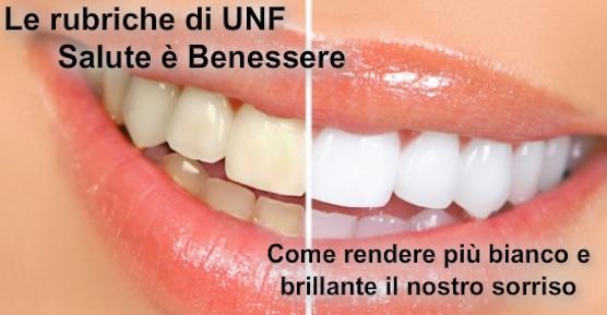 Dr Salvatore Ranieri Smile Designer Salute E Benessere Come Avere I Denti Bianchi Subito E Un Sorriso Brillante